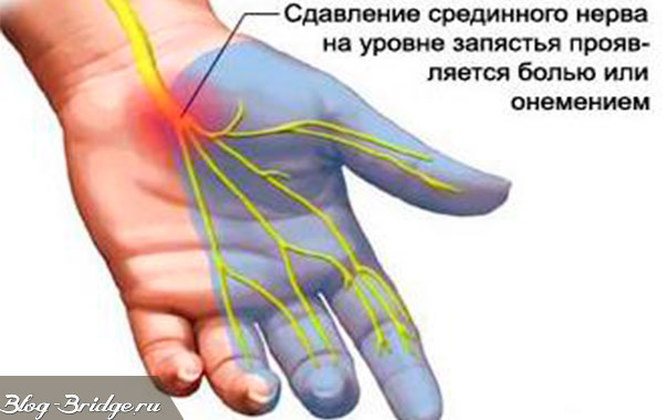 Онемение пальцев у беременных 122